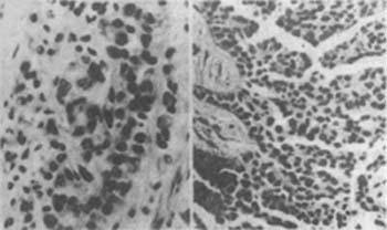 图2 恶性上皮型胸膜间皮瘤(左)及恶性胸膜间皮癌(右)