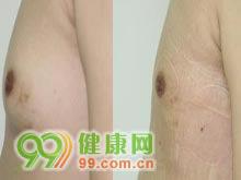 男性乳房肥大症