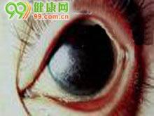 结膜干燥症