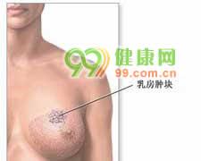 乳房纤维瘤