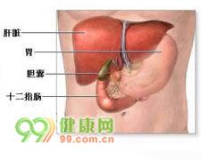 结石性胆囊炎