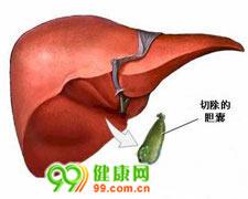 急性胆囊炎