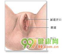 阿米巴性阴道炎