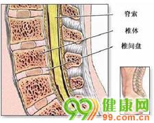 腰椎间盘突出症