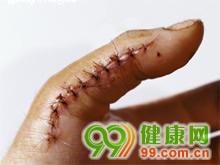 开放性手外伤